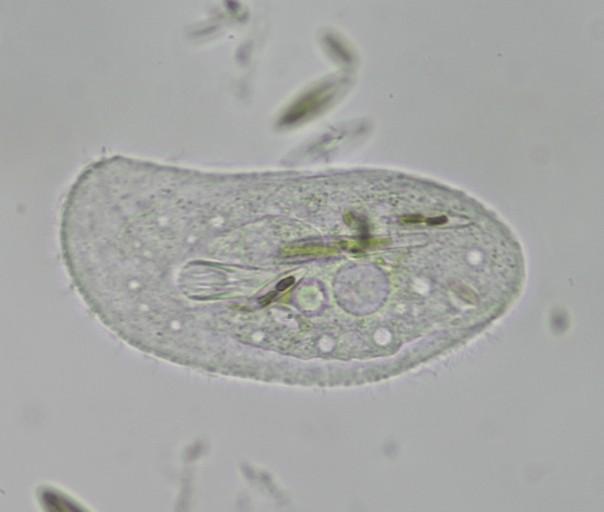 Pantoffeltierchen wie Paramecium und ähnliche Wimperntierchen
